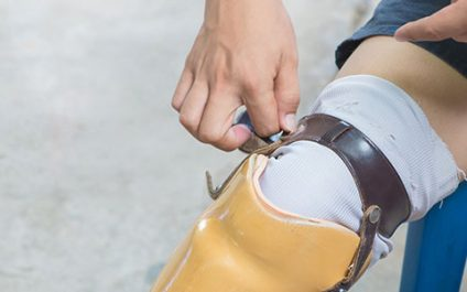 Assault cases involving prosthetic limbs