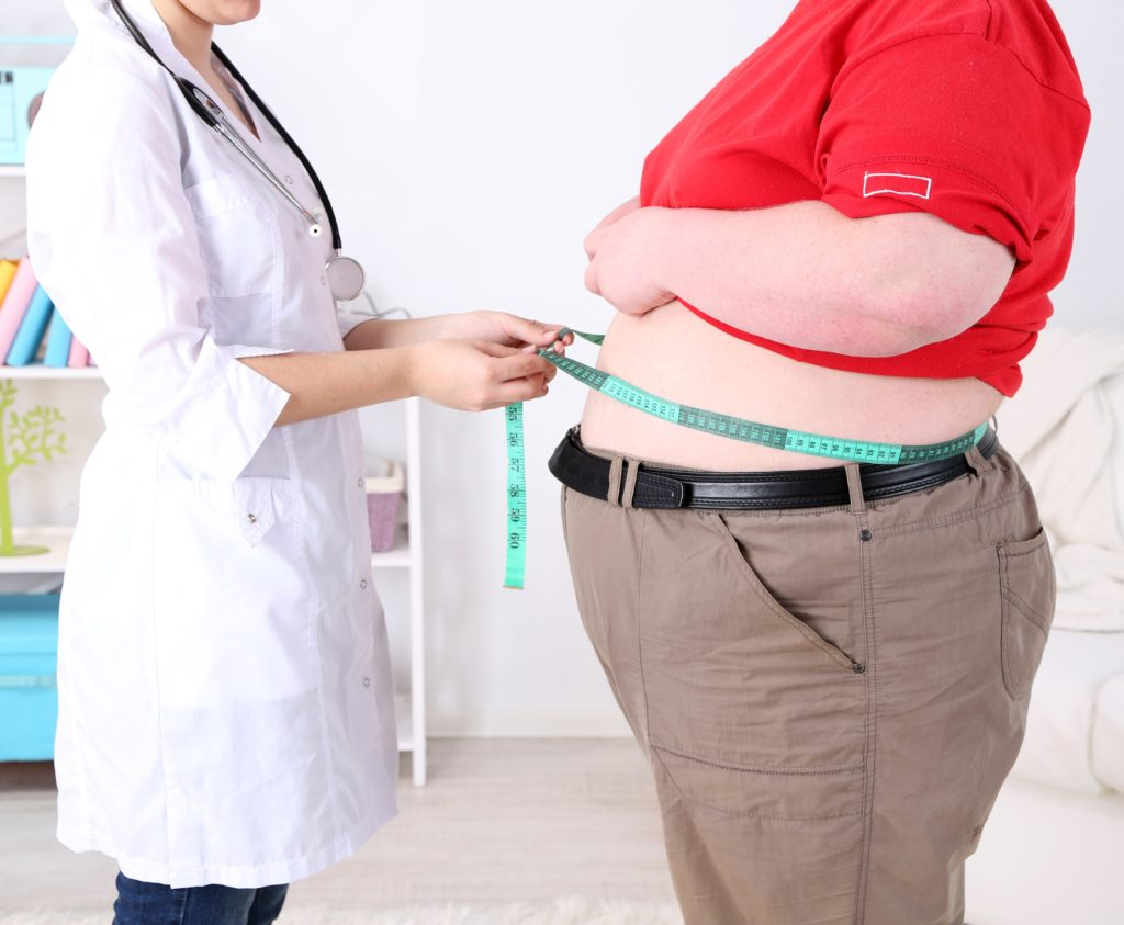 Image result for gastric bypass