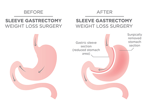 """Gastric_Sleeve_Surgery"