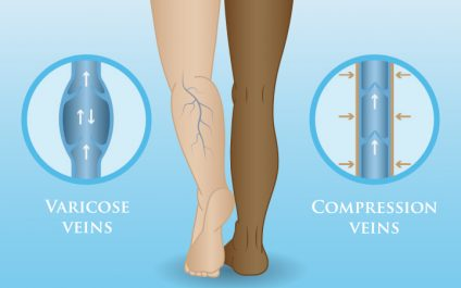 How to Keep Your Veins Healthy