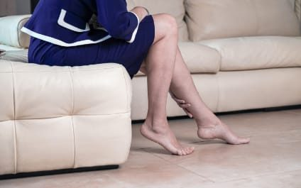 What can I do at home to help varicose veins and spider veins?