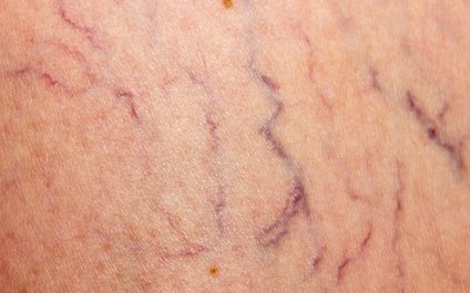 Can You Avoid Getting Spider Or Varicose Veins?