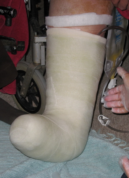Charcot Foot | Custom Orthotic Design Group