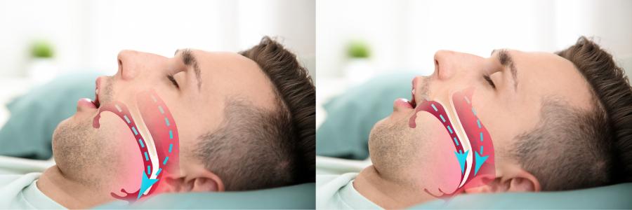 blog-img-sleep-apnea