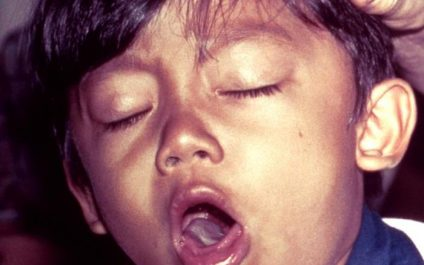Why You Need To Get The Pertussis (Whooping Cough) Vaccination For Your Child