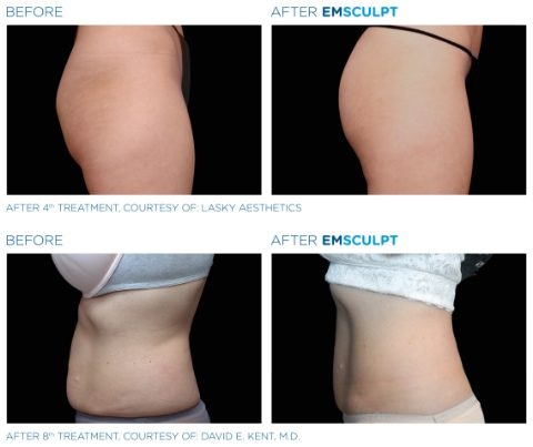 Emsculpt - Katy, Houston, Sugar Land | Ageless Med Spa