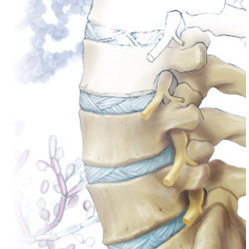 Spinal Infections | Canada East Spine Centre