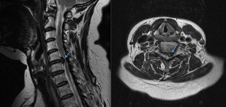 img-Anterior-Cervical-Discectomy-and-Fusion-02