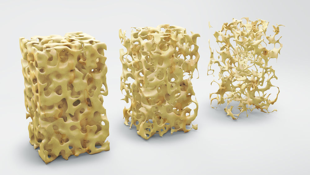 Osteoporosis-featured-image
