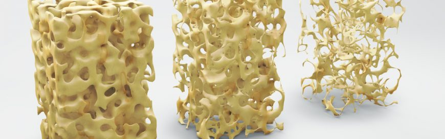 Osteoporosis and spine health