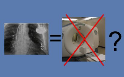 Is a Pacemaker/Defibrillator a Contraindication to MRI?